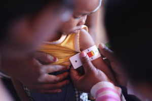 malnutrition en chiffres